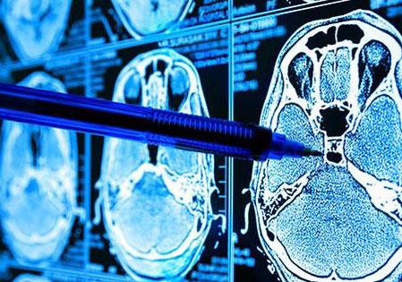 Machine Learning impulsiona a transformação tecnológica na área da saúde
